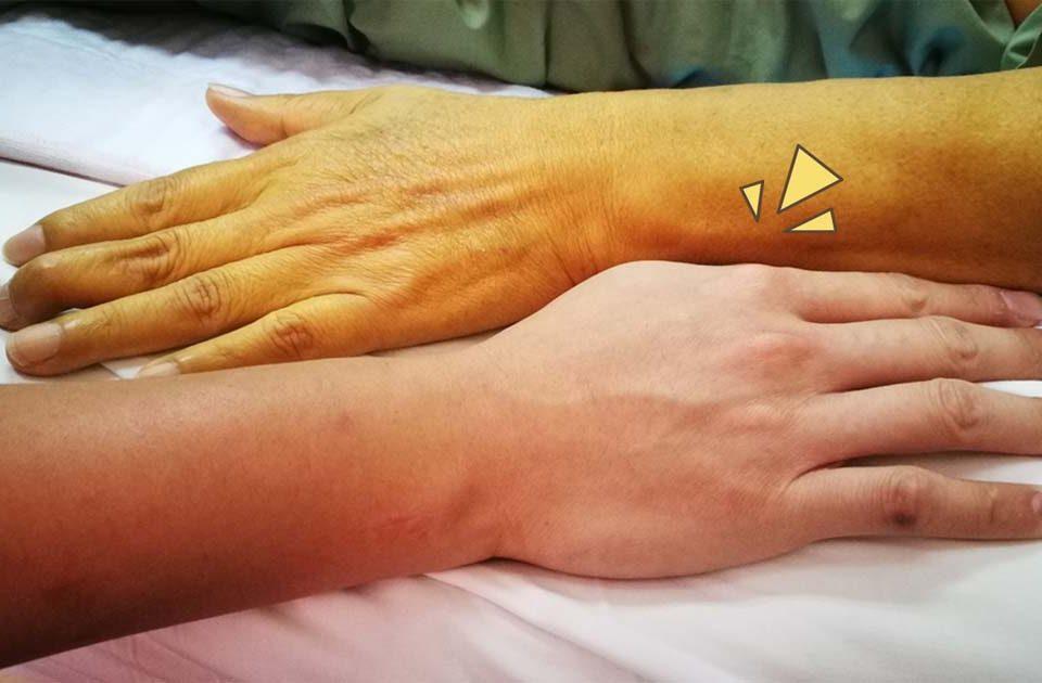 7 Gejala Penyakit Kuning, Bisa Jadi Tanda Masalah pada Liver